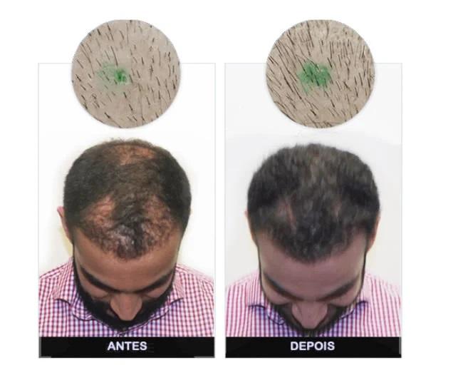Man Power Hair Relatos